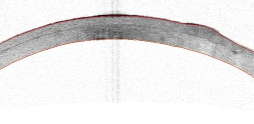 Fig 3. Postoperative OCT of cornea showing lamellar graft