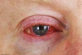 Povidone-iodine shows promise for viral conjunctivitis